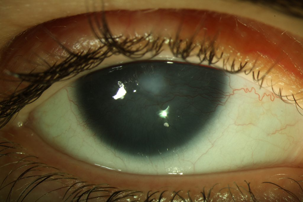 The usually transparent cornea is now covered with blood vessels from the conjunctiva, causing it to be opaque.