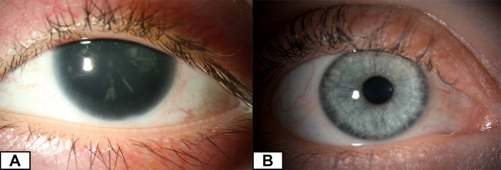 Comparison between an eye affected by aniridia which has no iris and a normal eye which has a hazel coloured iris.