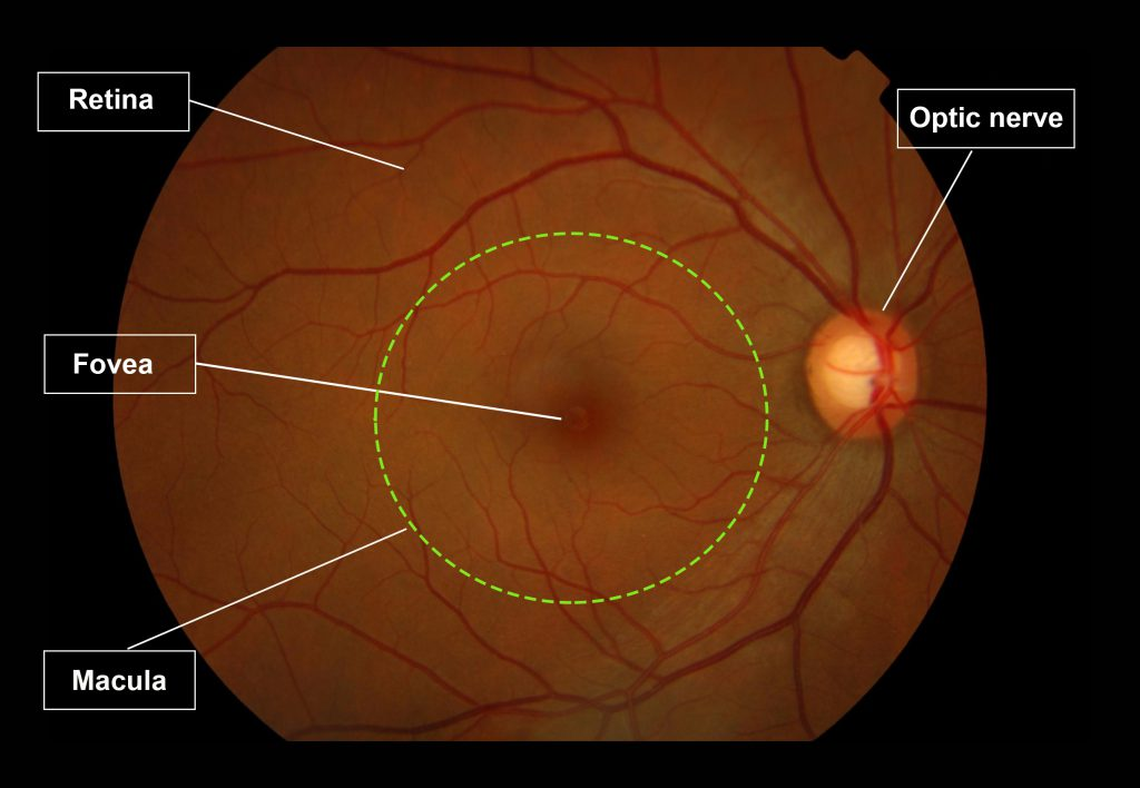 This is an image showing the human retina, which has a red-orange hue. There is a pale orange structure called the optic nerve with blood vessels emanating out supplying the upper and lower half of the retina. The macula is at the centre of the retina, delineated here with a green circle. The fovea is situated at the centre of the macula.