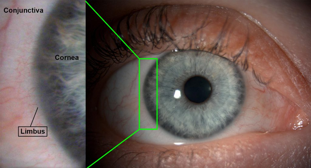 This image demonstrates the location of the limbus. It appears as the junction between the coloured part of the eye and the white of the eye