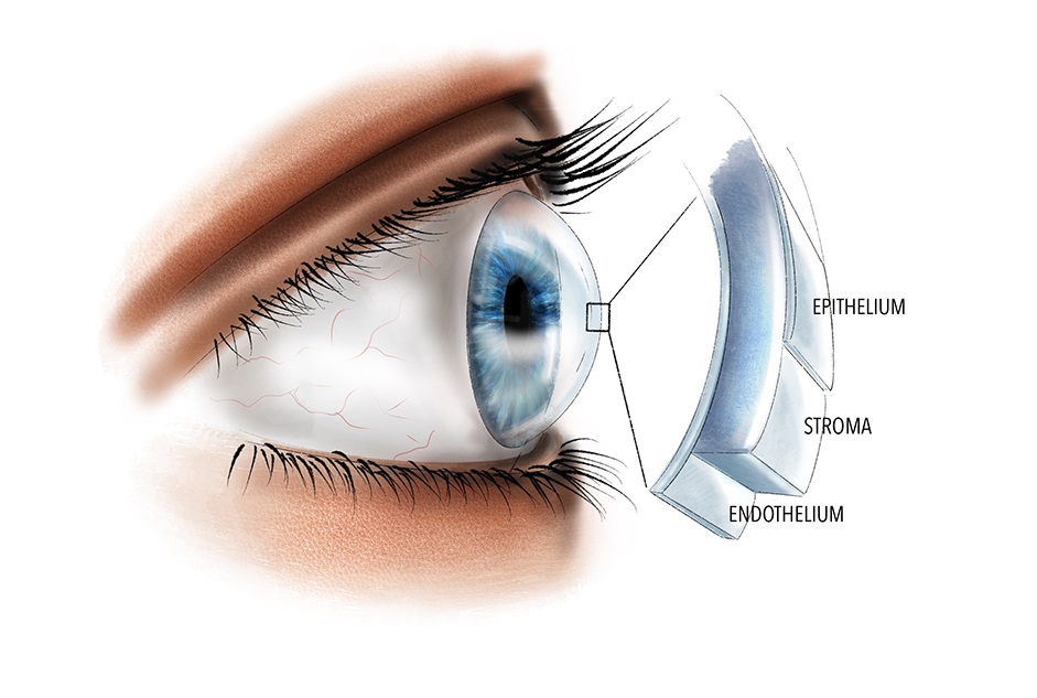 This image shows the different layers of the cornea (clear window of the eye), with the epithelium being the most superficial, followed by the storm and the endothelium is the deepest layer.