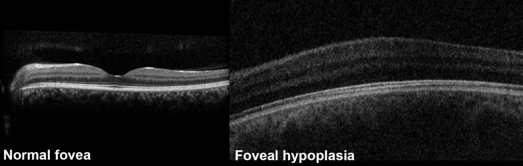 The normal fovea is visualised as a central dip on OCT whereas a patient with foveal hypoplasia does not have this dip.