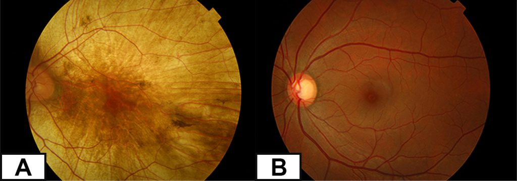 The retina has a pale yellow appearance in choroideremia while it looks has a darker orange look in a healthy retina.