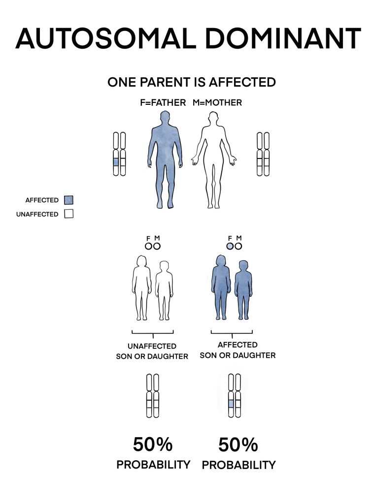 The faulty gene copy is present in the father while the mother is not affected. Each newborn of this couple has a 50% chance to be affected by the condition.