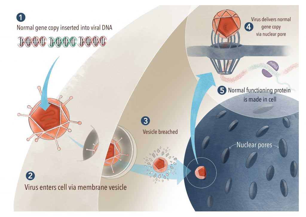 The normal gene copy is packaged into a harmless virus. The virus then breaches the target cells and delivers the normal gene copy to the cell's DNA mechanism. As a result, the cell is now making normal and functional protein.