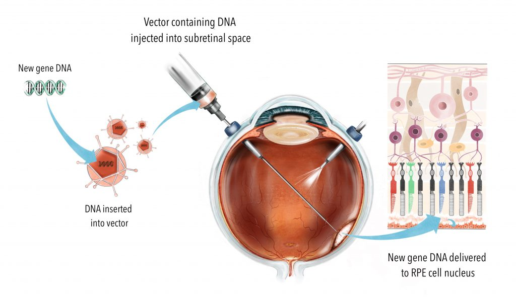 The normal gene copy is packaged into a harmless virus, which is then injected below the retina through surgery. This allows maximum exposure of the photoreceptors to the injected therapy