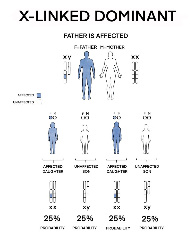 If the father has faulty gene copy on his X chromosome and the mother is unaffected, all daughters will be affected while all sons will be unaffected.