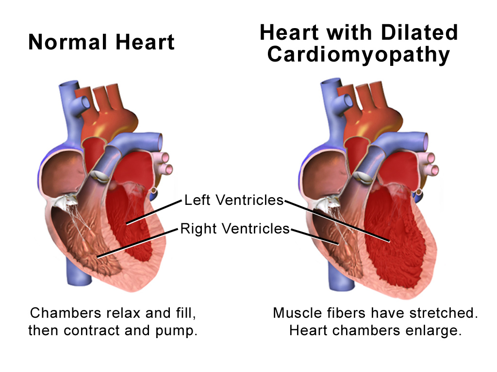 The heart is a muscle divided into 4 chambers. In dilated cardiomyopathy, all the heart chambers are enlarged due to stretching of the muscle fibres, causing it to be less effective at pumping blood to the rest of the body.
