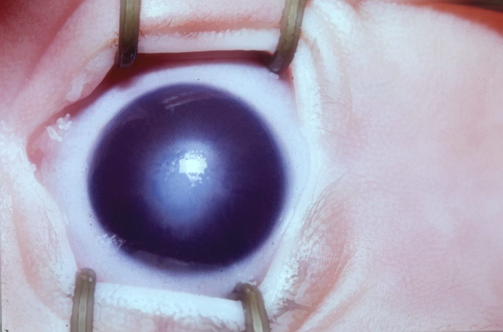 A eye with haziness in the central part of the cornea.