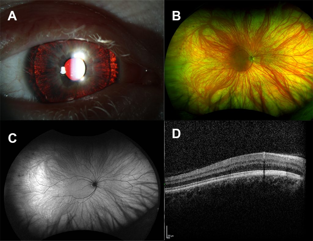 The iris of a patient with albinism shows the lack of iris pigmentations, with the red reflectance of the retina shining through when light is shone at the eye. The retina has a lack of pigmentation and appears white and the deeper blood vessels are easily visible.
