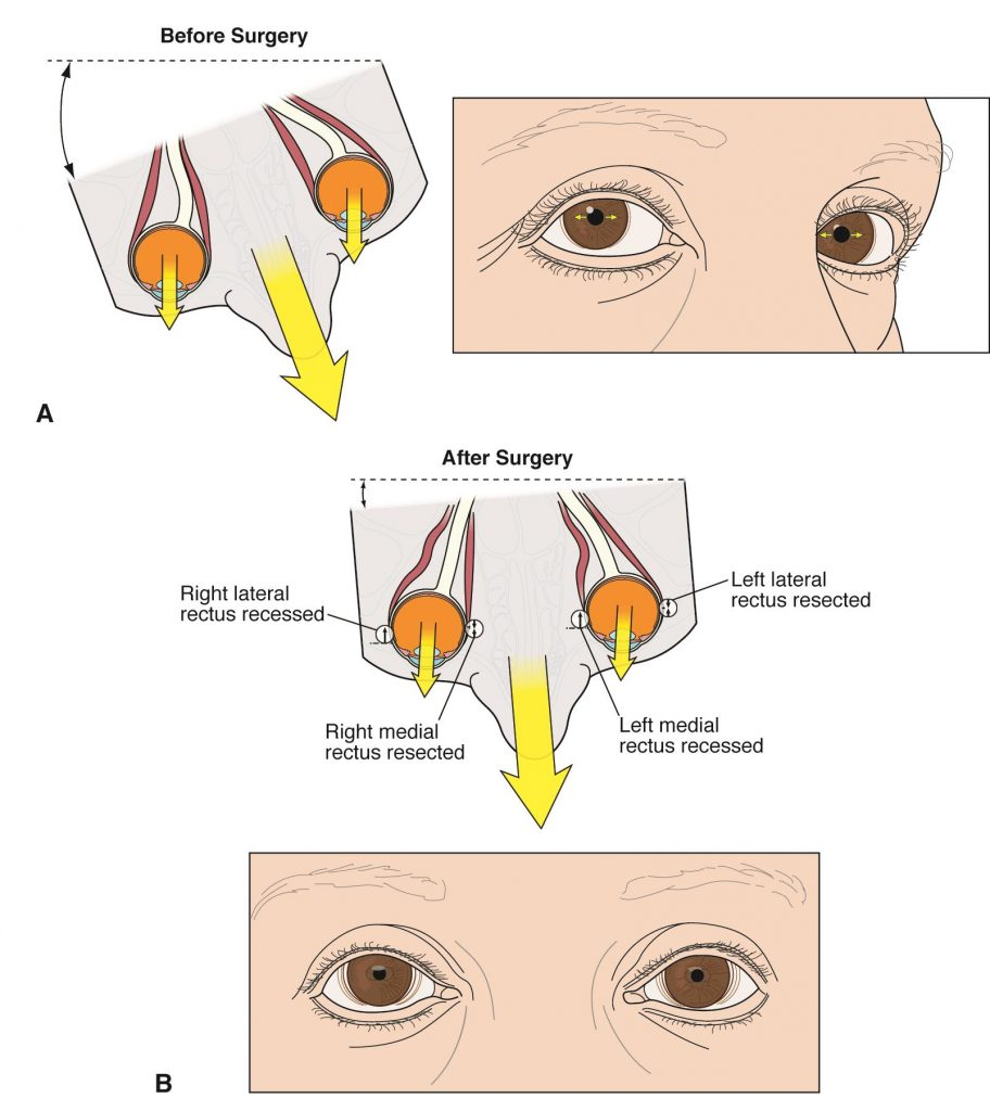 The patient's gaze was looking to the right prior to surgery. After surgery, the gaze has been straightened.