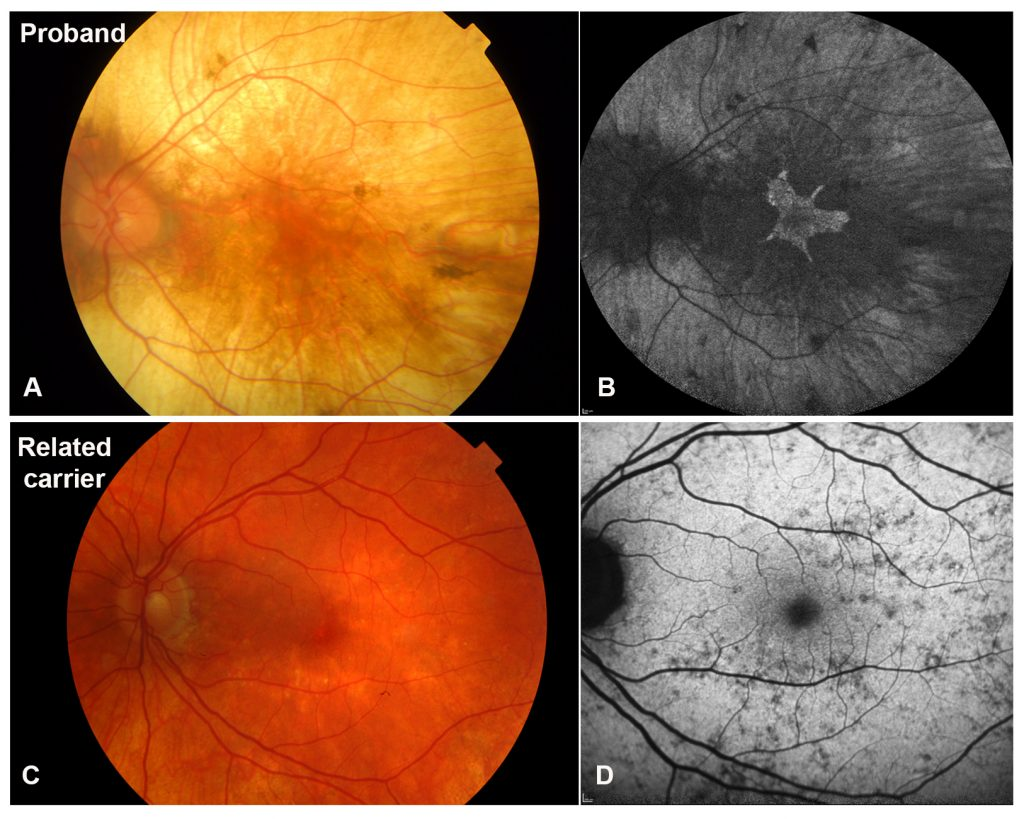 It shows the difference between the retina of a choroideremia patient and its corresponding fundus autofluorescence appearance and a related female carrier.