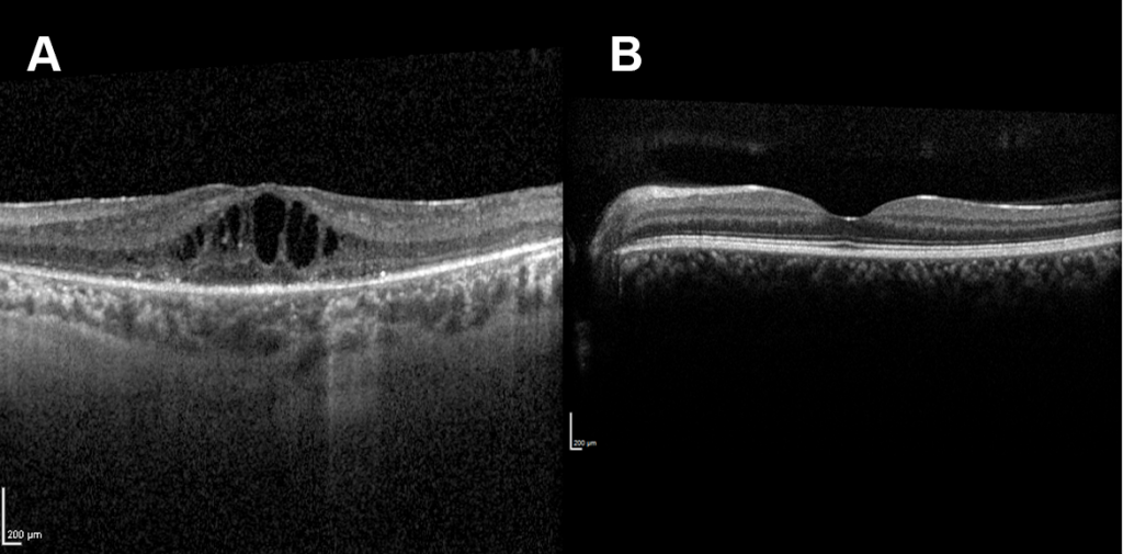 A cross-sectional scan of the macula. A patient with cystoid macular oedema will have cyst-like fluid pockets accumulation in the macula, while normal it should appear flat with a central dip.