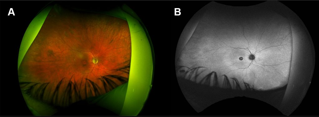 The retina of a patient with cone dystrophy due to mutation in the RPGR gene. The retina looks relatively normal apart from the macula which looks degenerated.