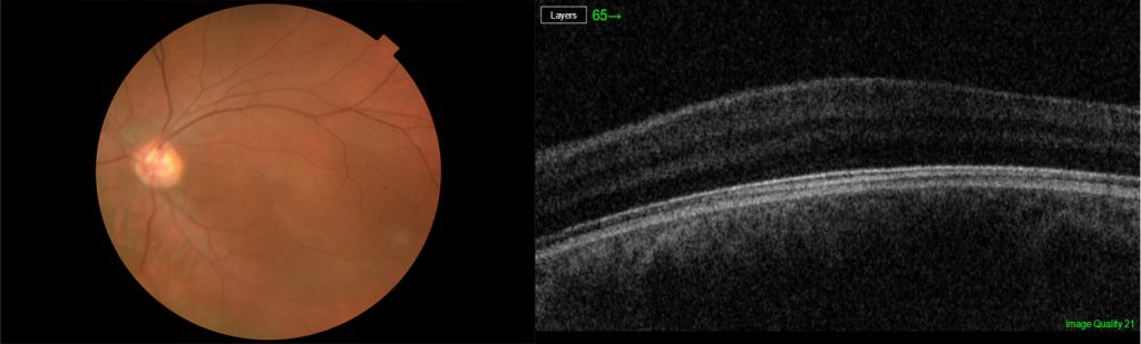 OCT scan of the macula showing the absence of a pit which is normally present in normal individuals.
