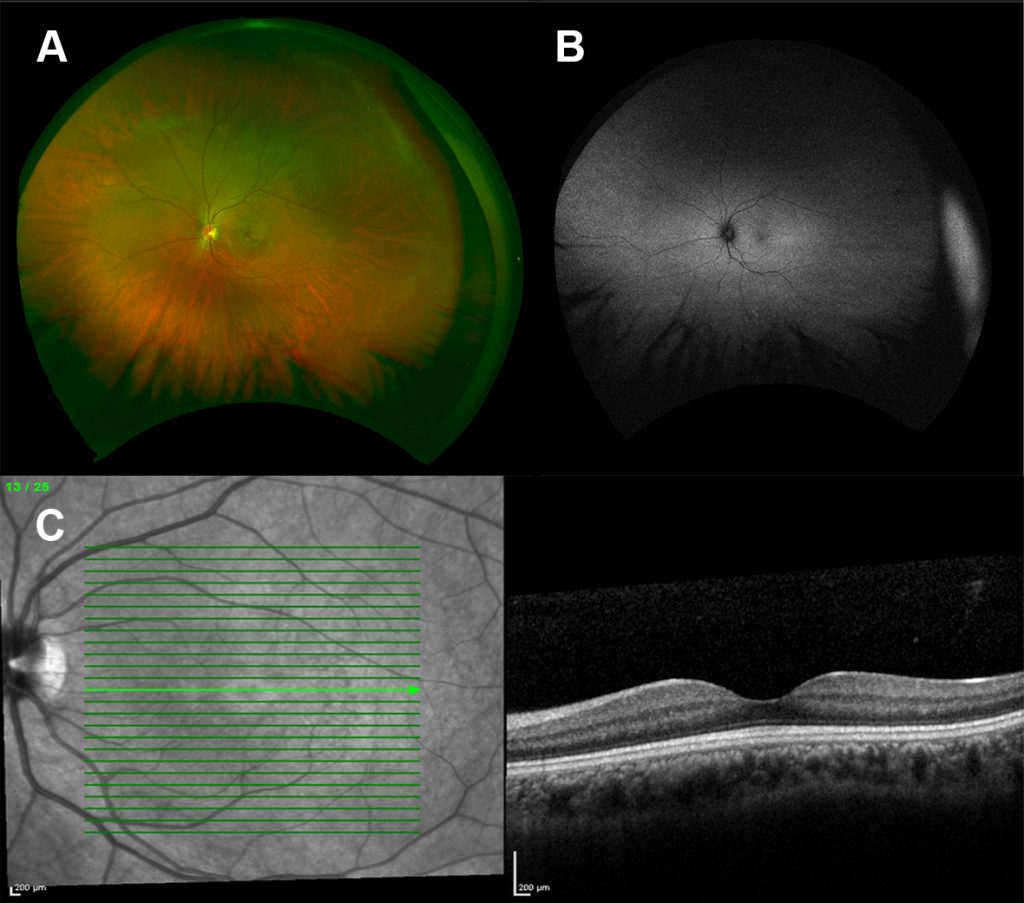 Different images of the retina of a patient with achromatopsia due to mutations in the GNAT2 gene. No abnormalities in the retina was found in all imaging protocols.