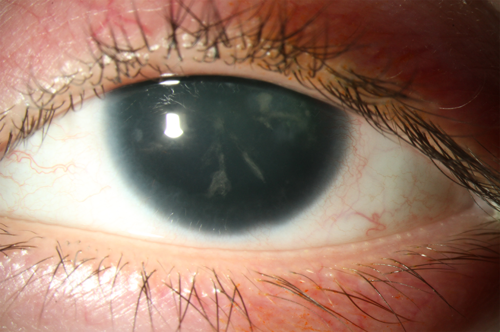 A patient with no iris, typical of aniridia and some catarac