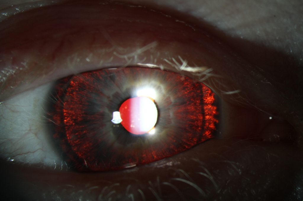 There are diffuse redness around the iris when light is shone at the eye. This is because the reflex of the retina is able to shone through the iris due to a lack of pigment.