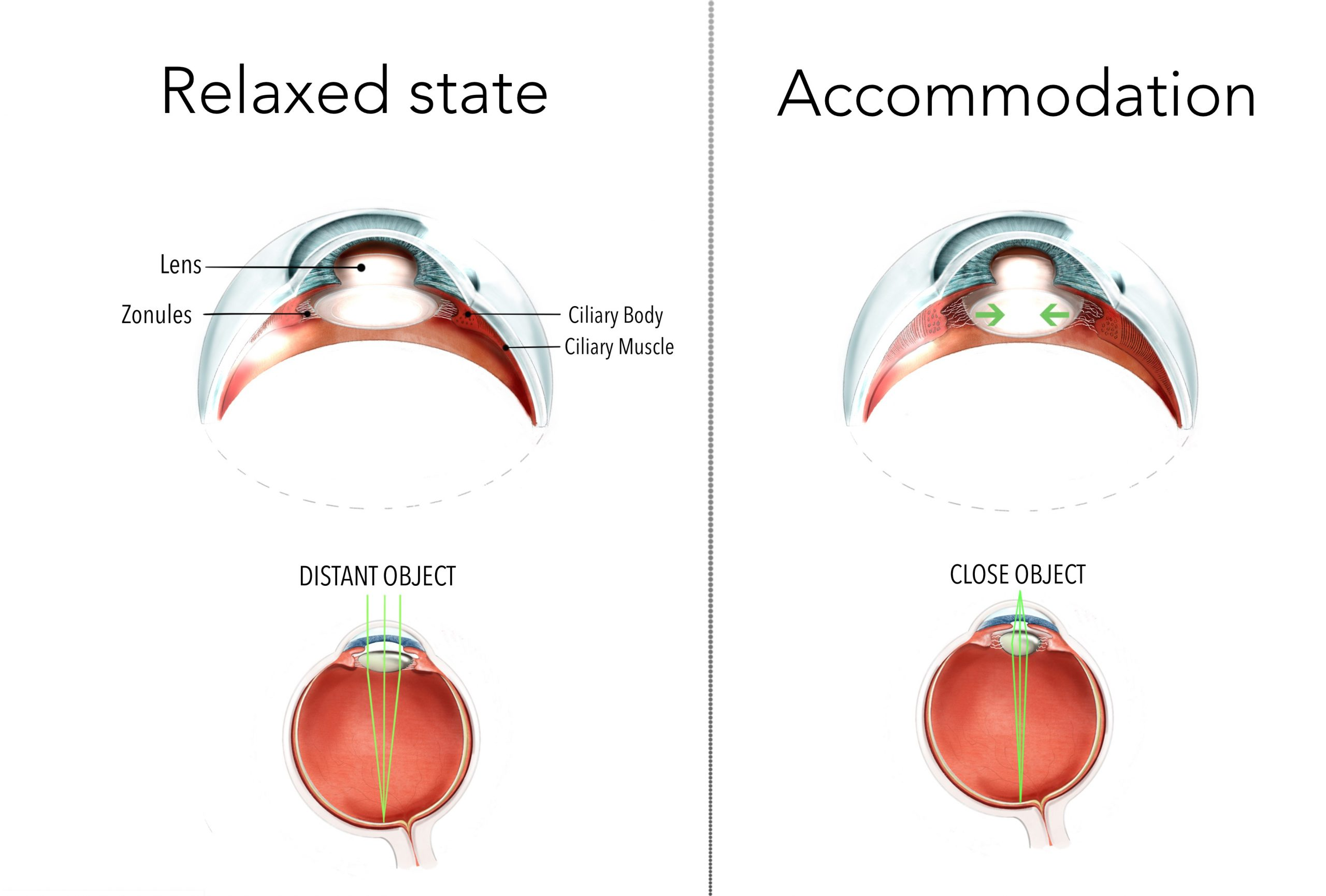 Diagrams showing the inside workings of the eye. When focusing at a distant object, the ciliary body tightens, elongating the lens. When focusing at a near object, the ciliary body relaxes and the lens becomes shorter and thicker.