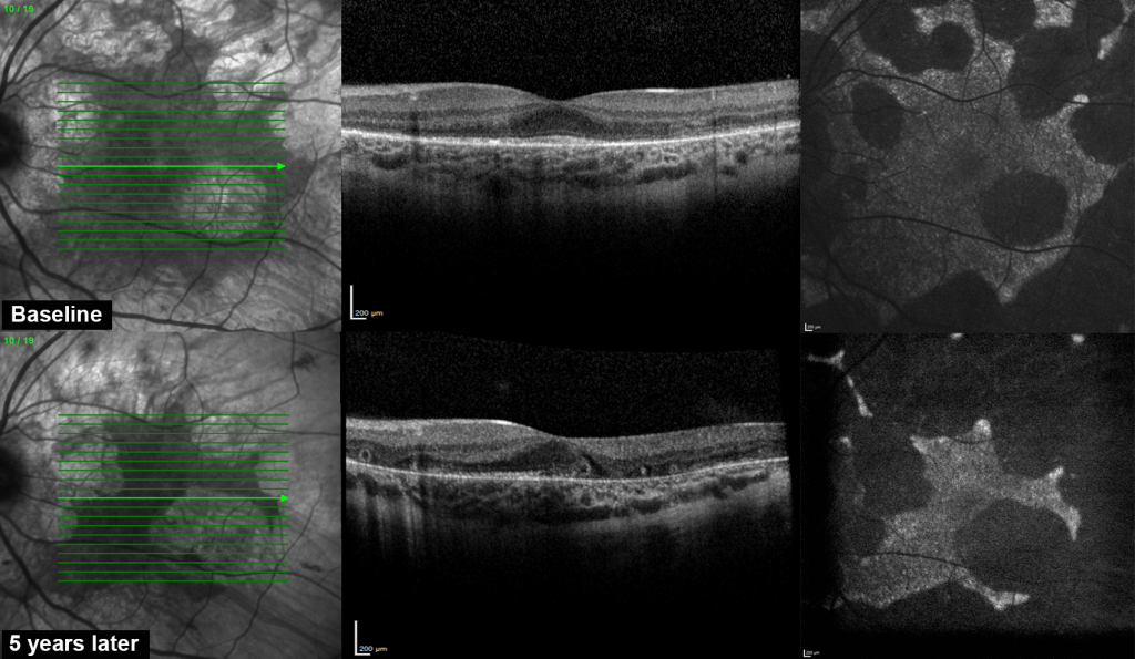 Comparison of OCT image of the same patient 5 years apart, showing ellipsoid zone shortening, signifying disease progression.