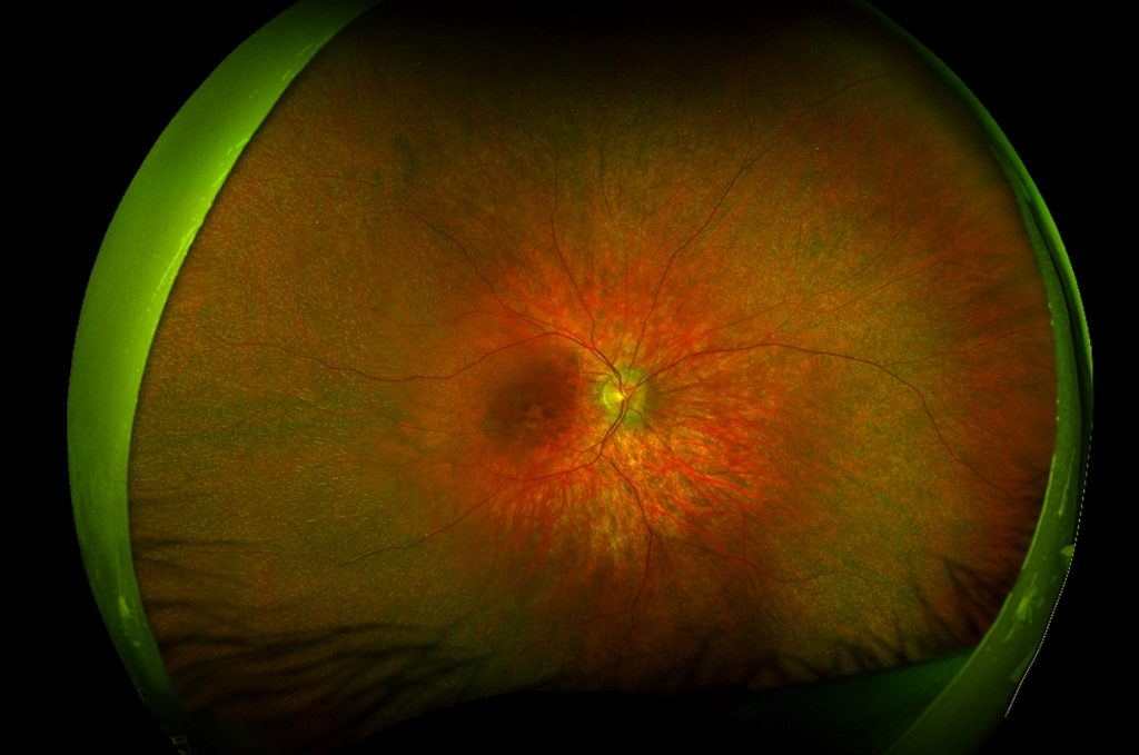 The retina of a patient with retinitis pigmentosa due to mutations in the RLBP1 gene. There are multiple white dot-like deposits throughout the retinal periphery.