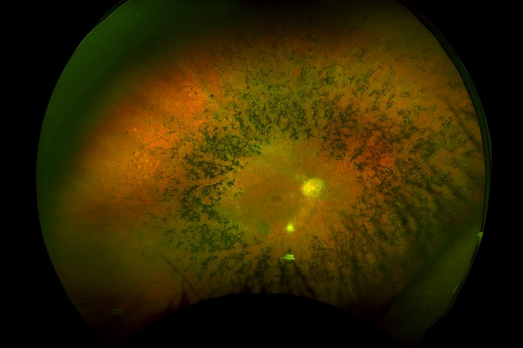 The right retina of a patient with retinitis pigmentosa showing the typical features, a pale circle signifying the optic nerve, with diffuse liner black pigments deposited in the peripheral retinal in a circumferential pattern surrounding the optic nerve.