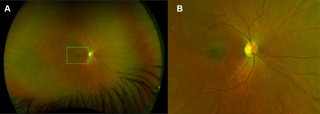 Photograph of a patient's retina with Stargardt disease. There are dull-yellowish linear deposits scattered around a small area of the macula, surrounding an area of retinal degeneration, which appears dark grey.