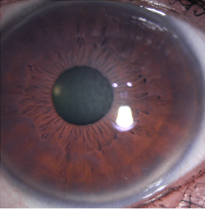 There is a yellowish ring-like deposits at the outer edge of the cornea, bordering with the white of the eye. This is a cholesterol deposit. The central cornea is relatively clear.