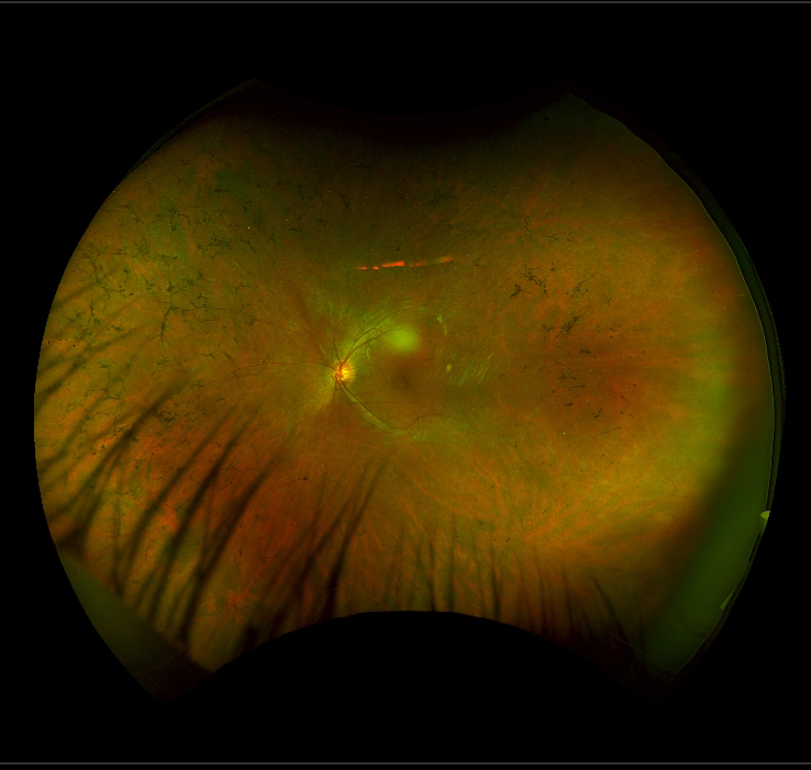 "The retina of a patient with mutations in the USH2A gene, displaying typical characteristics of retinitis pigmentosa. There are multiple linear ""bone-spicule"" like dark deposits around the peripheral retina."