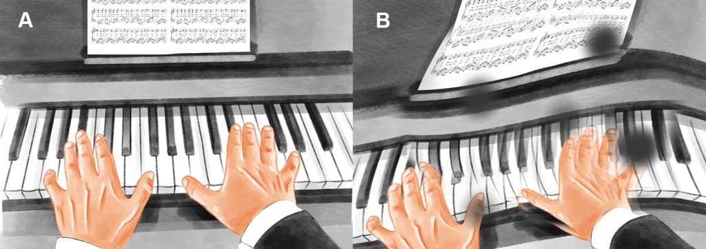 How metamorphopsia looks from a patient's perspective. A pair of hands playing the piano. The piano keys appear distorted, along with the notes above the keys.