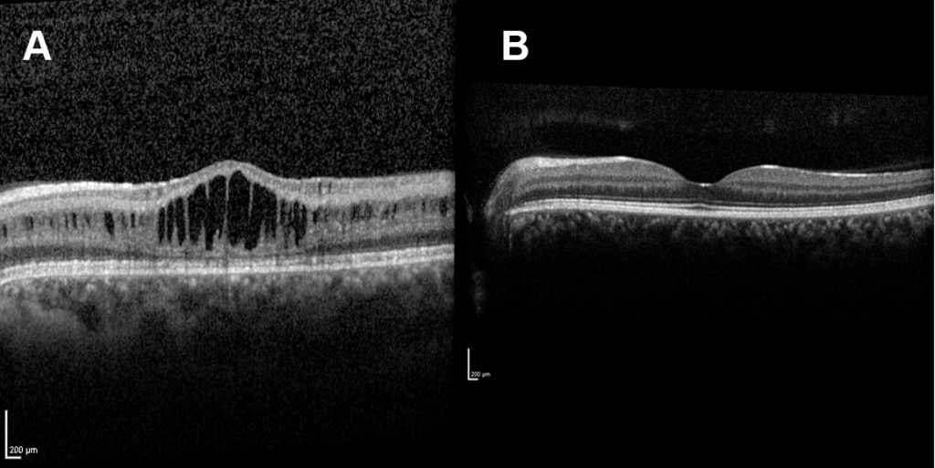 Comparison between the macula of a patient with X-linked retinoschisis and an unaffected individual. The macula of the patient with X-linked retinoschisis has a cystic-like appearance while this is not apparent in the unaffected individual.